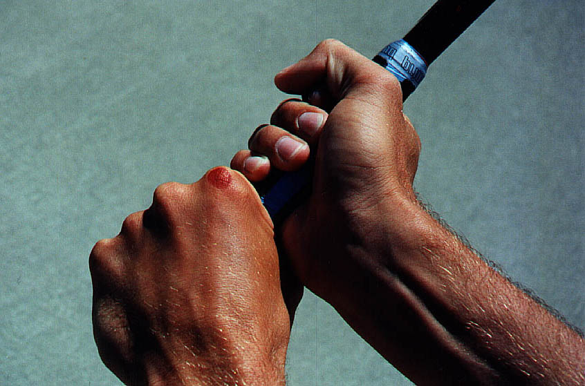 http://www.tennisserver.com/turbo/images/turbo_97_10/fig10L.JPG
